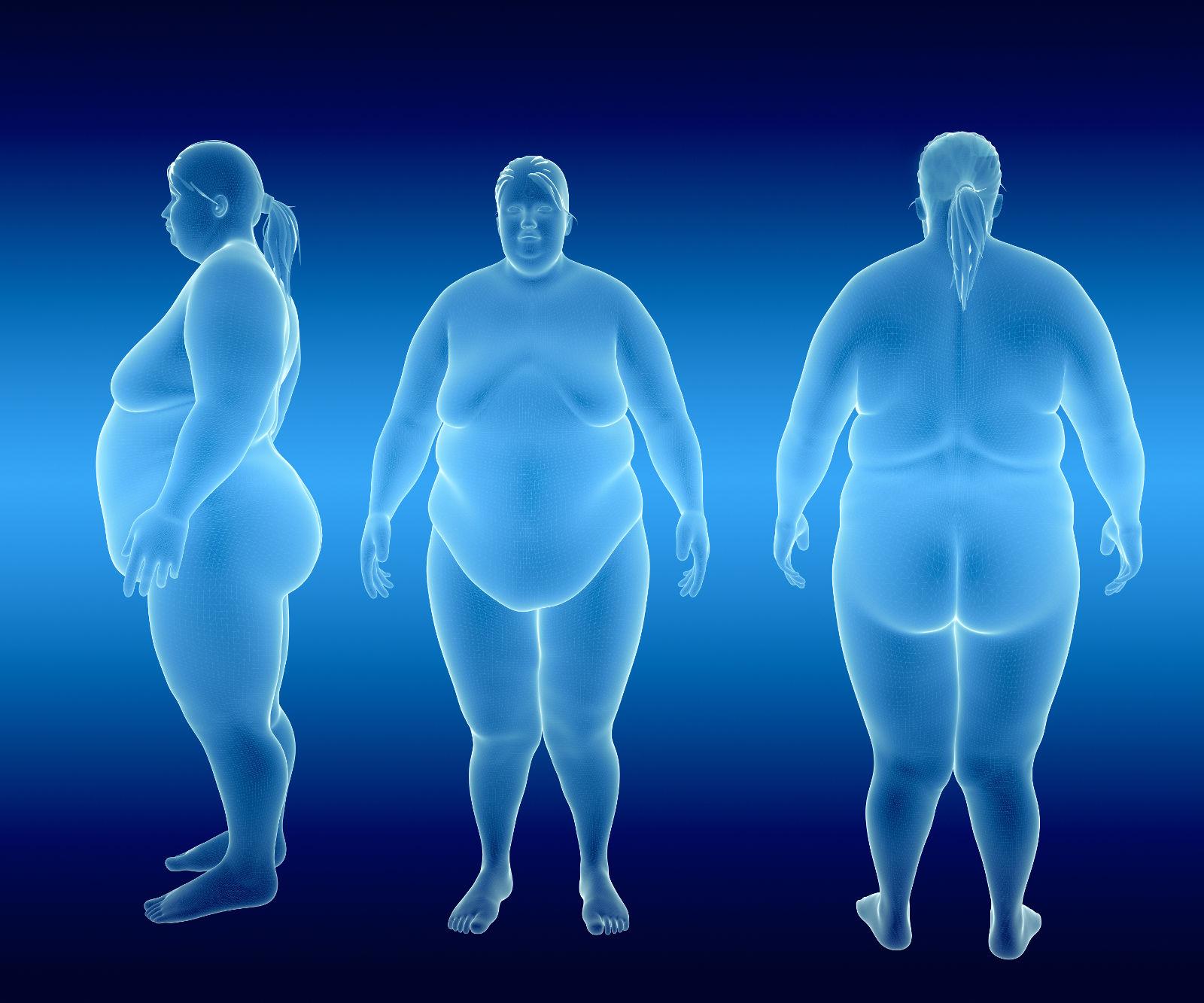 obesità e fattori in sovrappeso